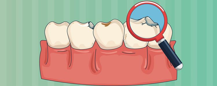 The Basics of Teeth Discoloration