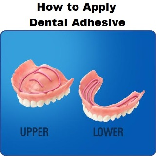 How to Apply Dental Adhesive